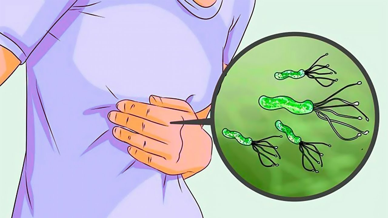poate oferi sfaturi pentru prevenirea viermilor