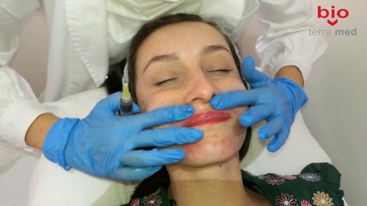 tratamentul paraziților în gât