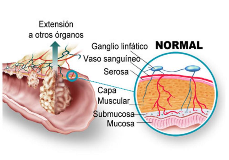 enterobius vermicularis pronounce