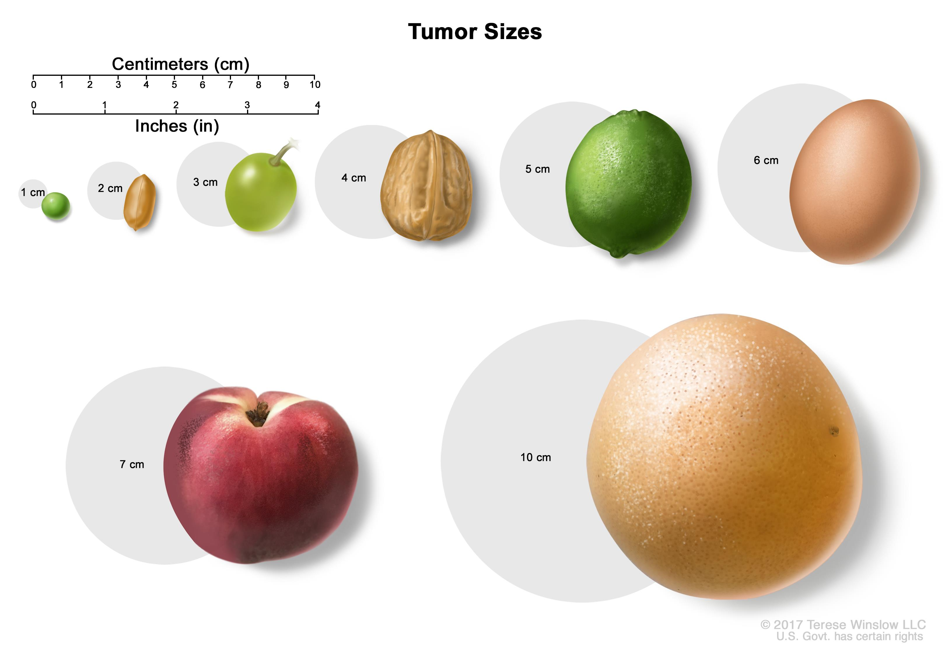 pancreatic cancer tumor size)