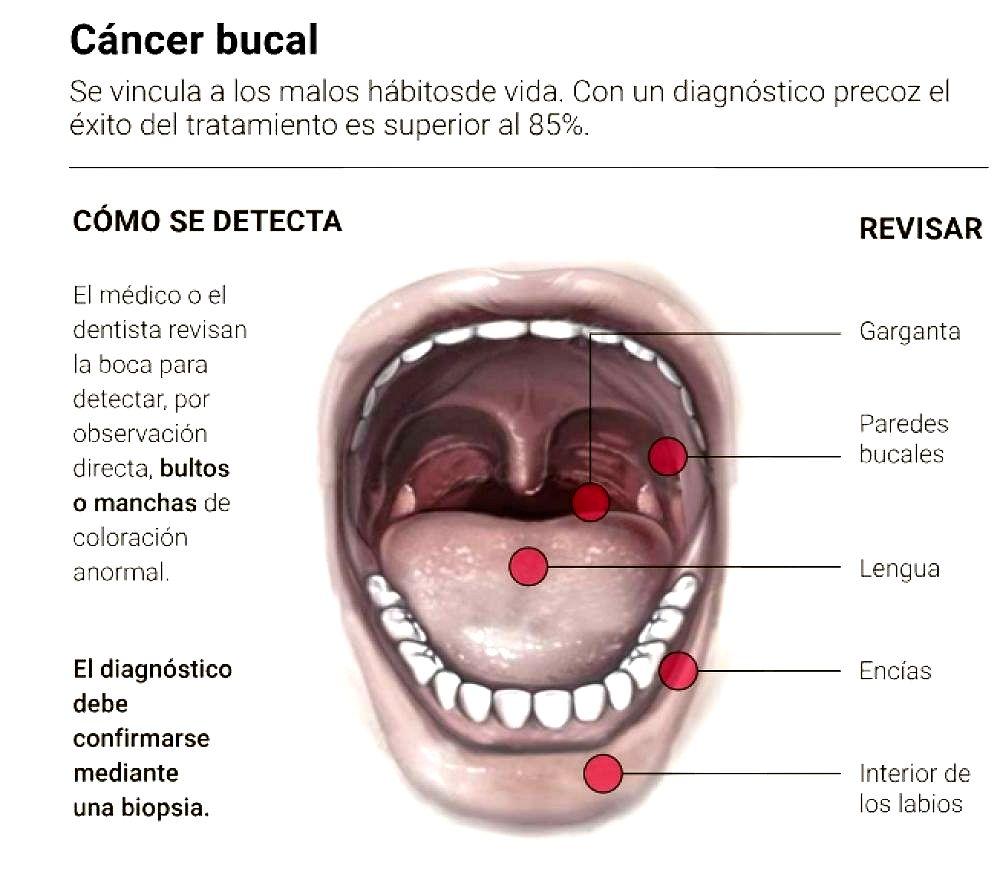 Papiloma en la boca diagnostico - LIQUEN PLANO ORAL Y CÁNCER. T. 92 bacterie qui empeche de maigrir
