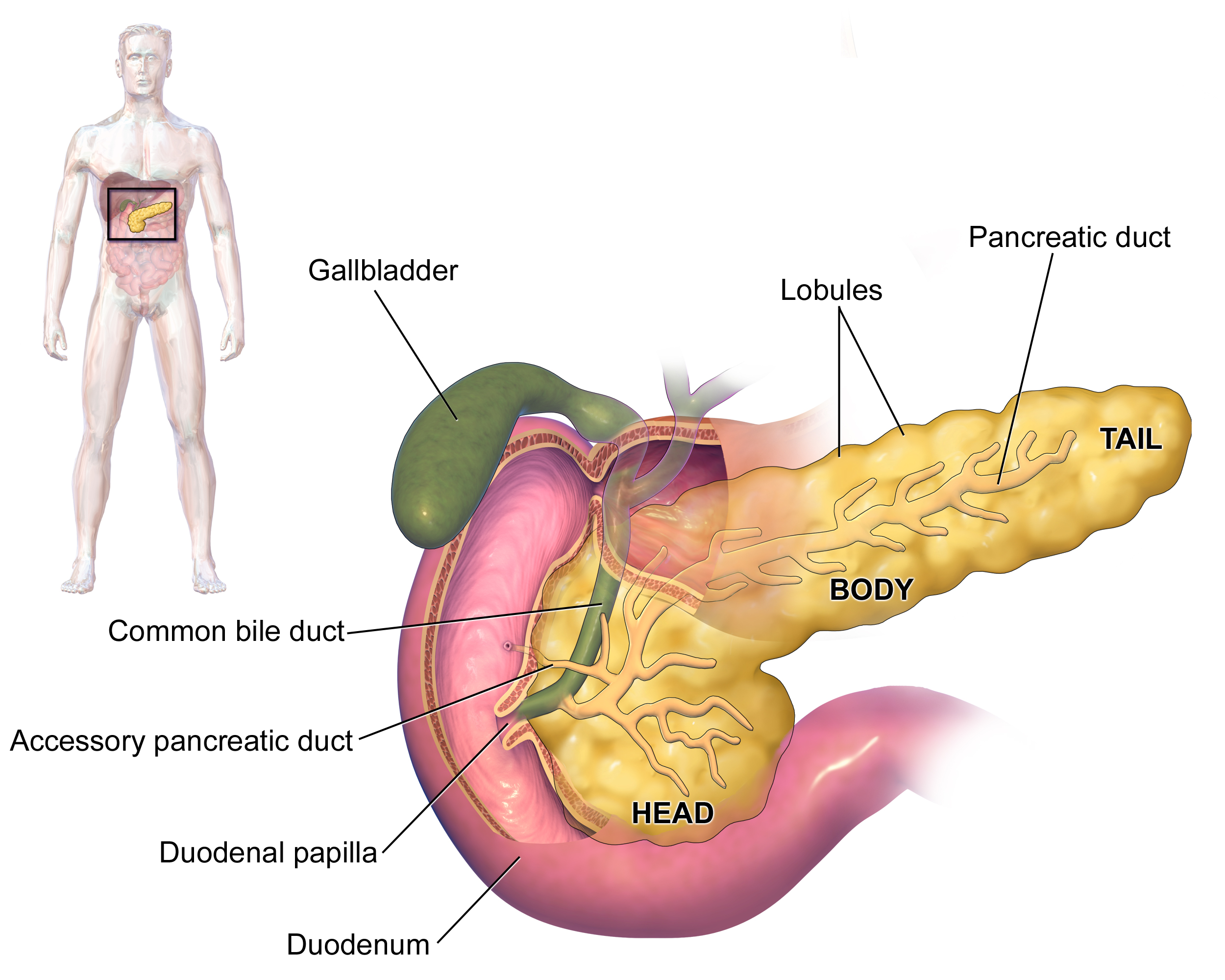 Pancreatic cancer young female, Traducere