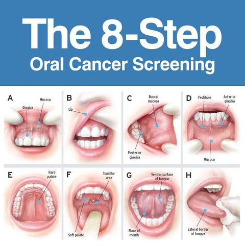 hpv mouth cancer