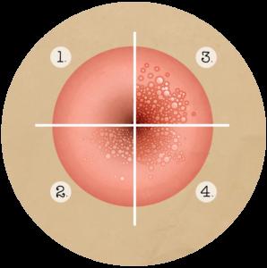comment voir le papillomavirus chez l homme)