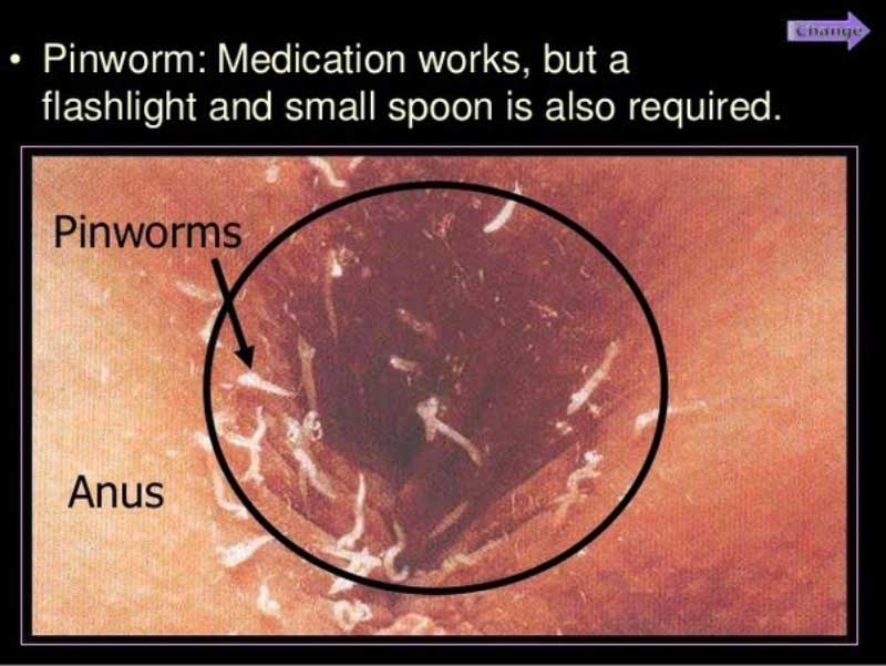 infecții cu helminthicus emedicină cel mai bun medicament pentru viermii umani