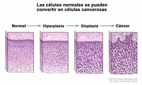 Biologia celulară a cancerului - Corneliu Dorin Olinici - Editura Medicală