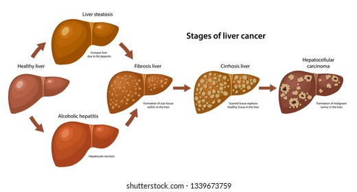 hepatic cancer hcc