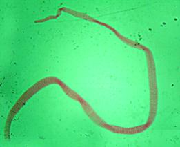 detoxifiere energetică organism u0026 curățare colon