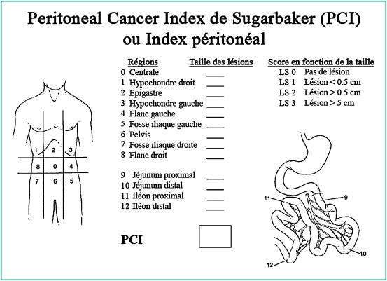 peritoneal cancer index sugarbaker)