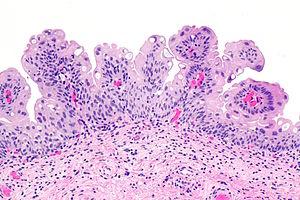 papilloma in bladder)