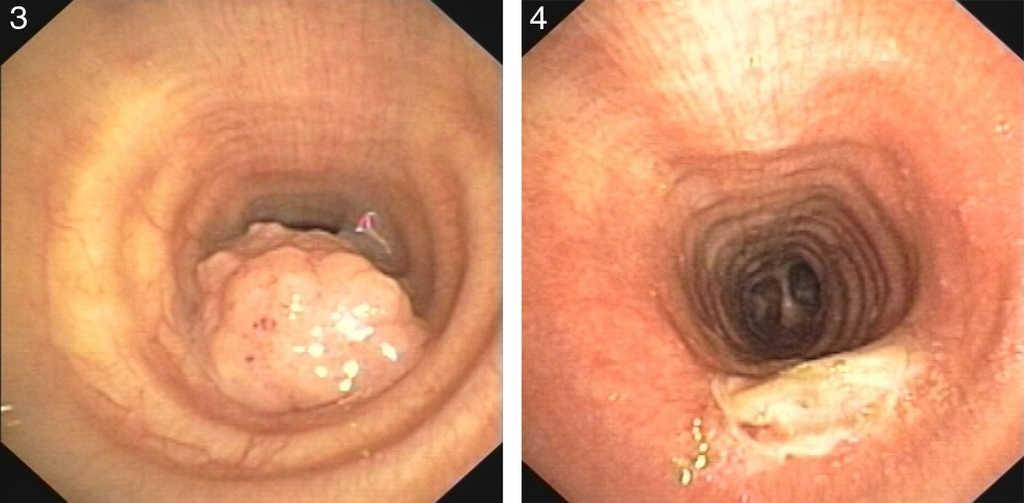 Treatment with papillomas Papilloma skin treatment