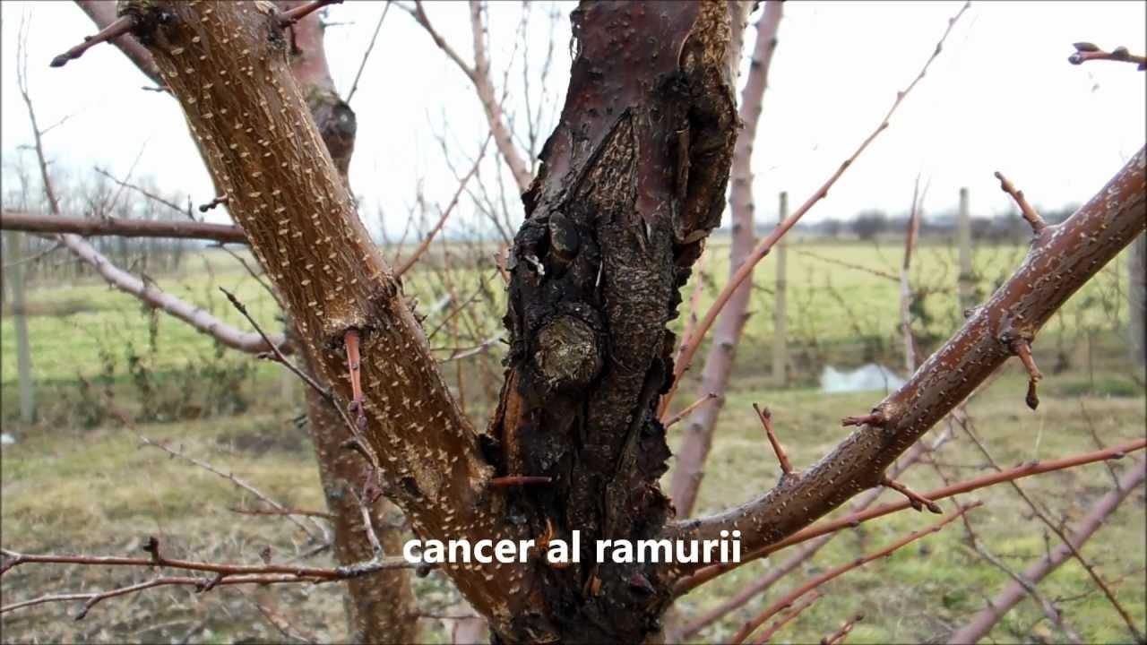 cancerul copacilor)