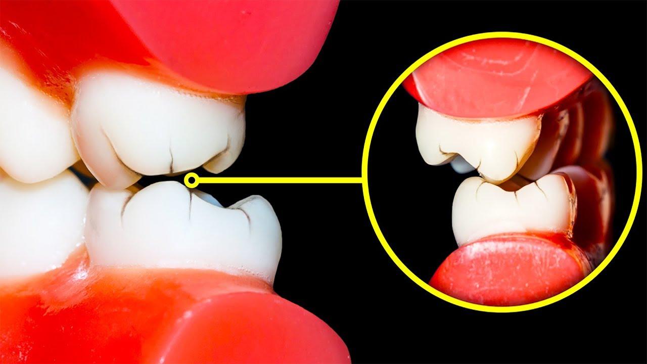 Oxiuros rechinar dientes