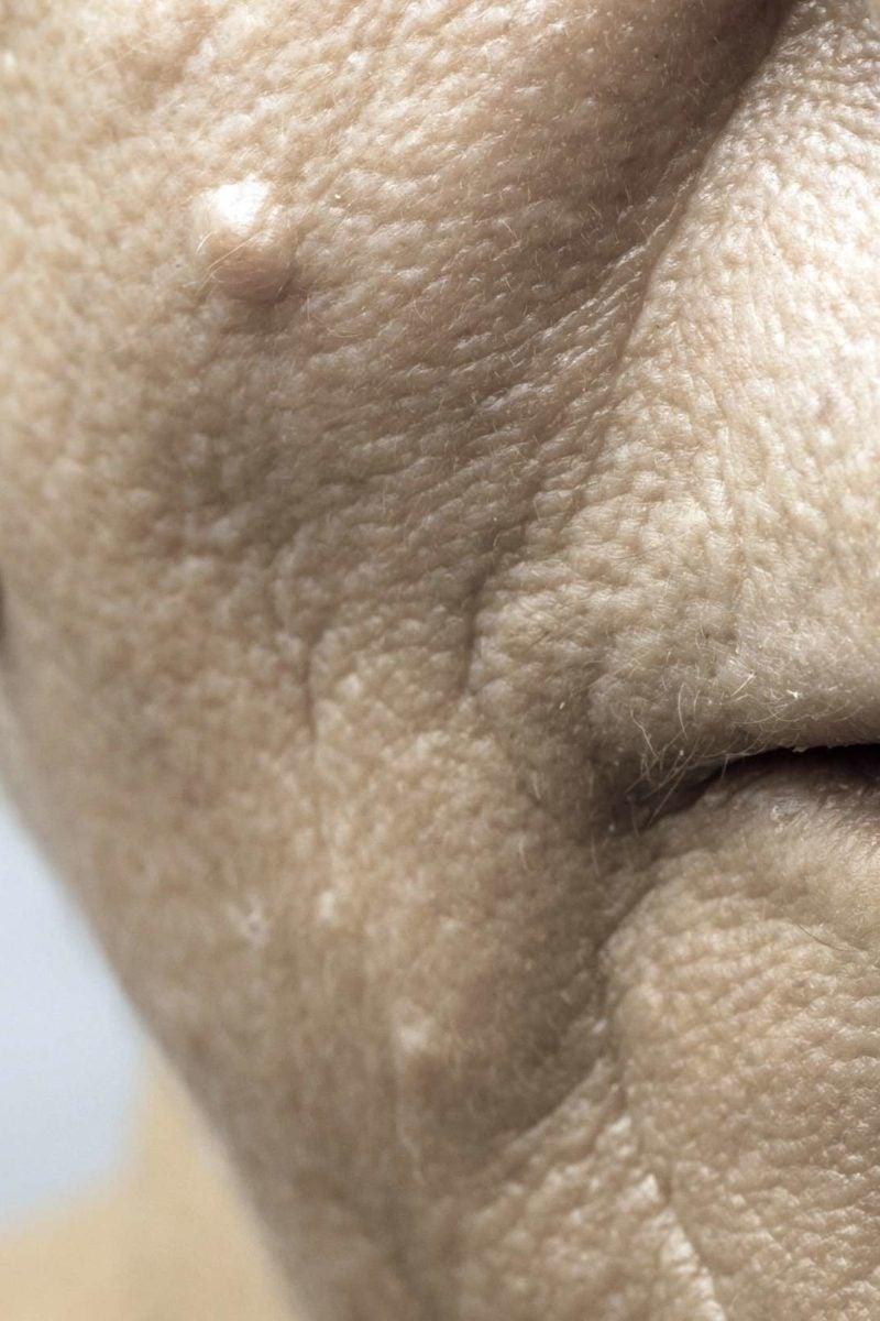 HPV la forumul de tratament pentru bărbați)