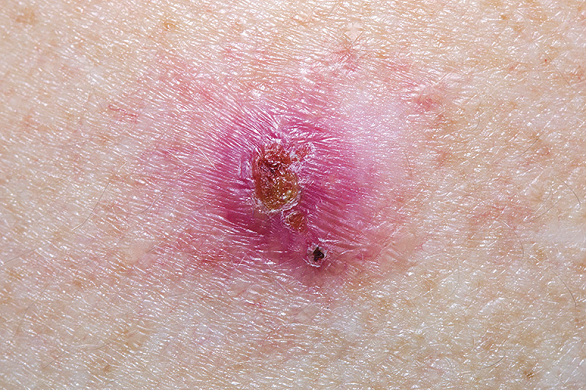 se ia cancerul de piele vaccino papilloma uomo adulto