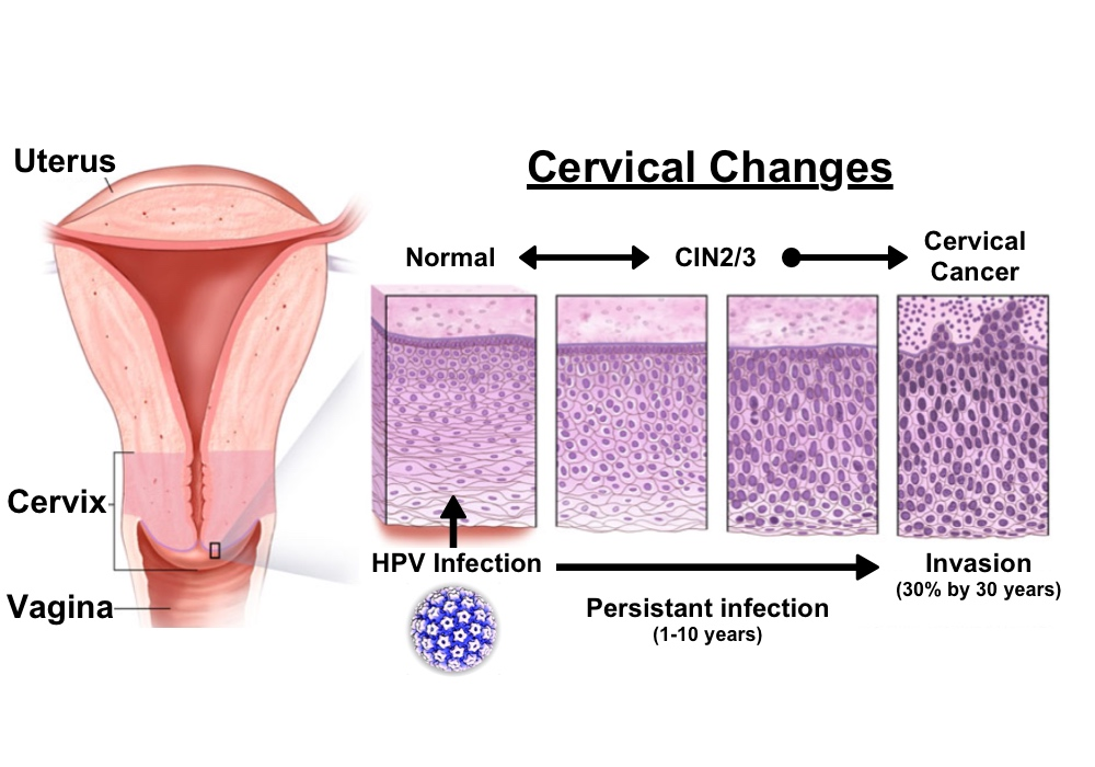 can human papillomavirus infection be cancerous)