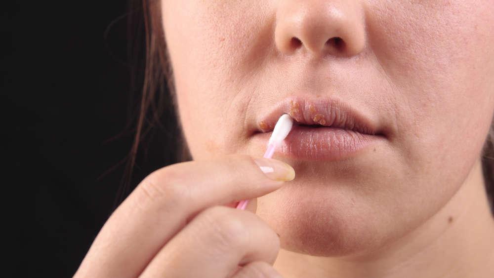 se efectuează tratamentul cu helmintiază)