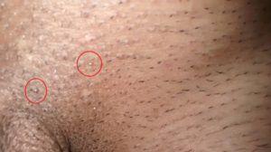 virusul papiloma pe corp oxiuros como eliminar