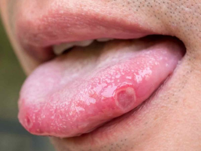 medicamento para el papiloma en la boca)