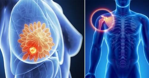 cancer sarcoma sintomas