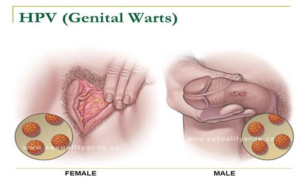 Human papillomavirus hpv warts
