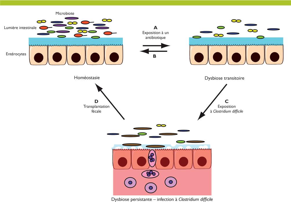 recherche toxine clostridium difficile