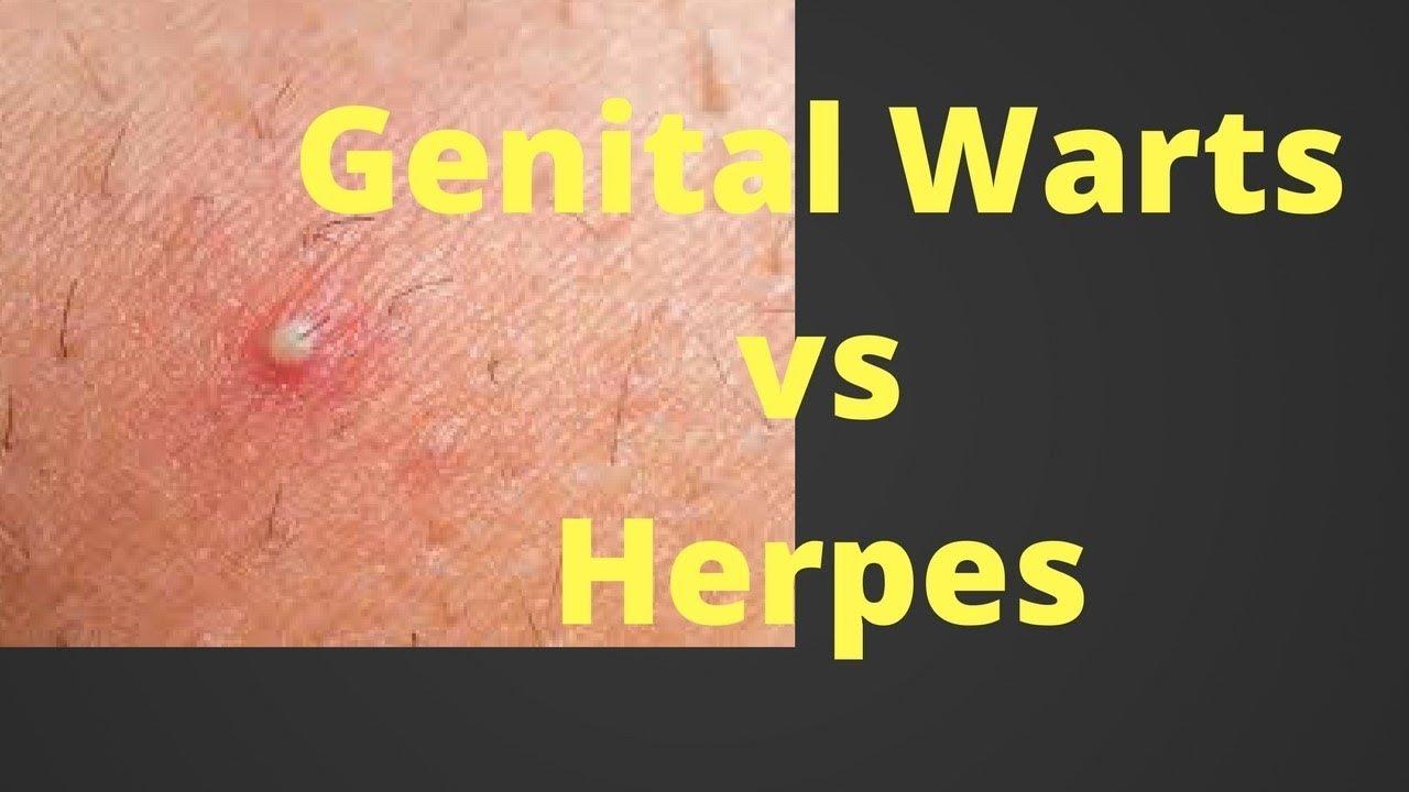 Hpv warts vs genital herpes