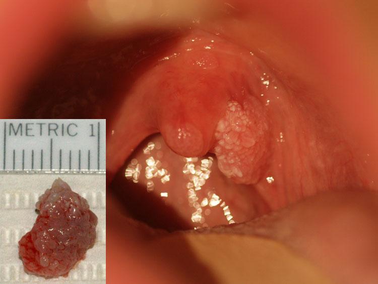 papilloma wart in throat