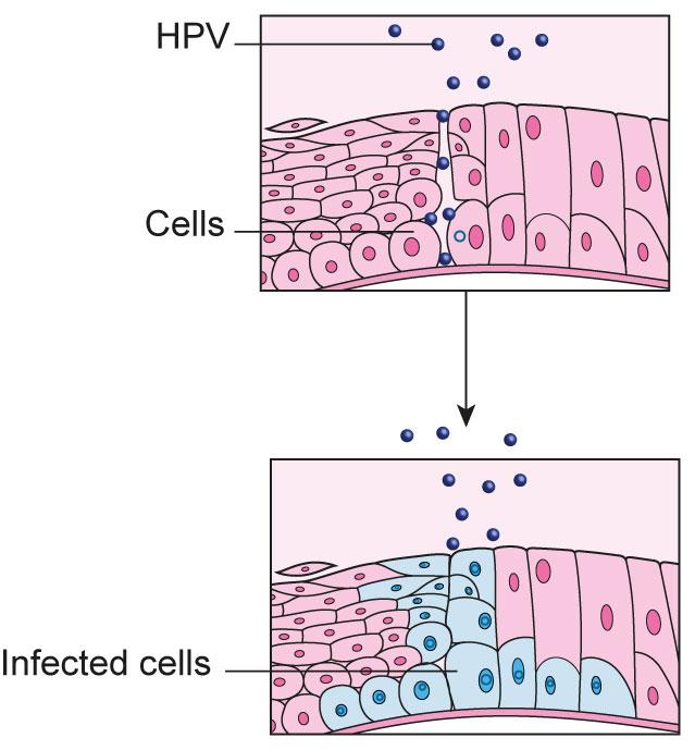 high risk hpv cancer symptoms)