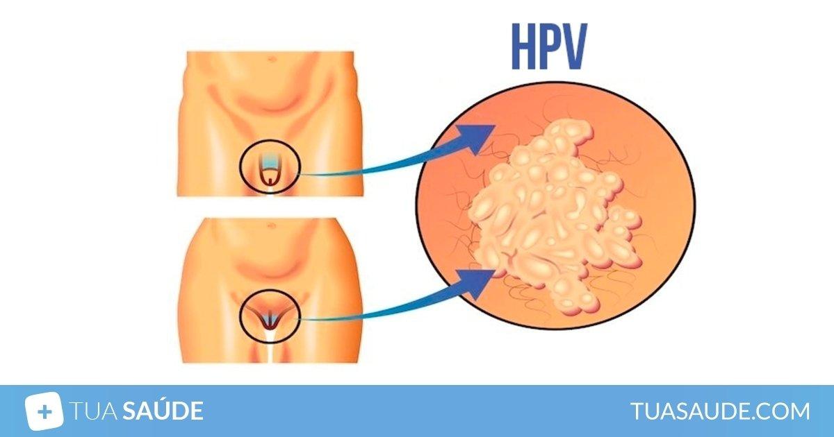 Tratament hpv pentru barbati