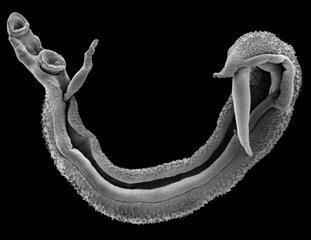 Schistosomiasis in swahili
