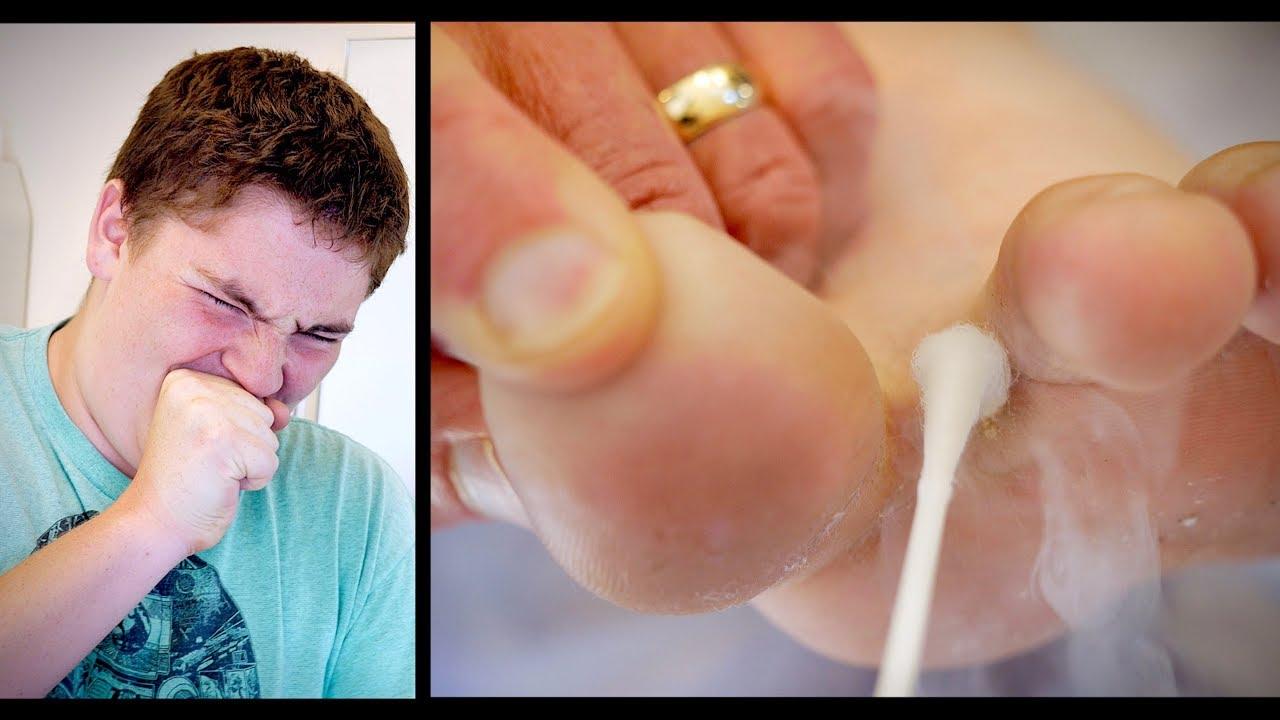 warts on foot with liquid nitrogen)
