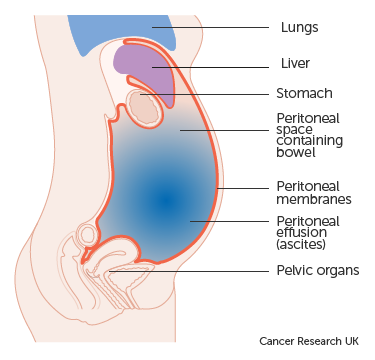 Peritoneal cancer ascites. Peritoneal cancer with ascites