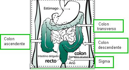 Cancer de vezica urinara metastaze, Cancer colon lazo