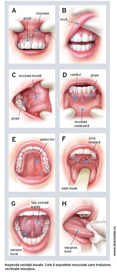 simptome cancer in gura)