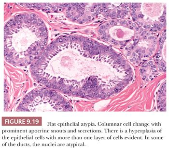 sclerosing intraductal papilloma with apocrine metaplasia