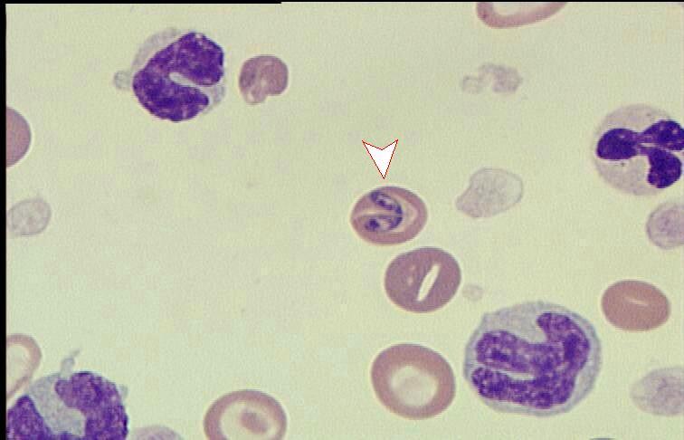 Frotiul de sange periferic si numarul de reticulocite