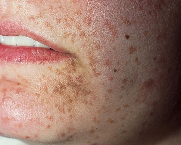 poate obține virusul papiloma oxiuri femei