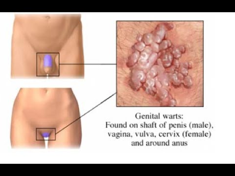 condilom al mucoasei vaginale