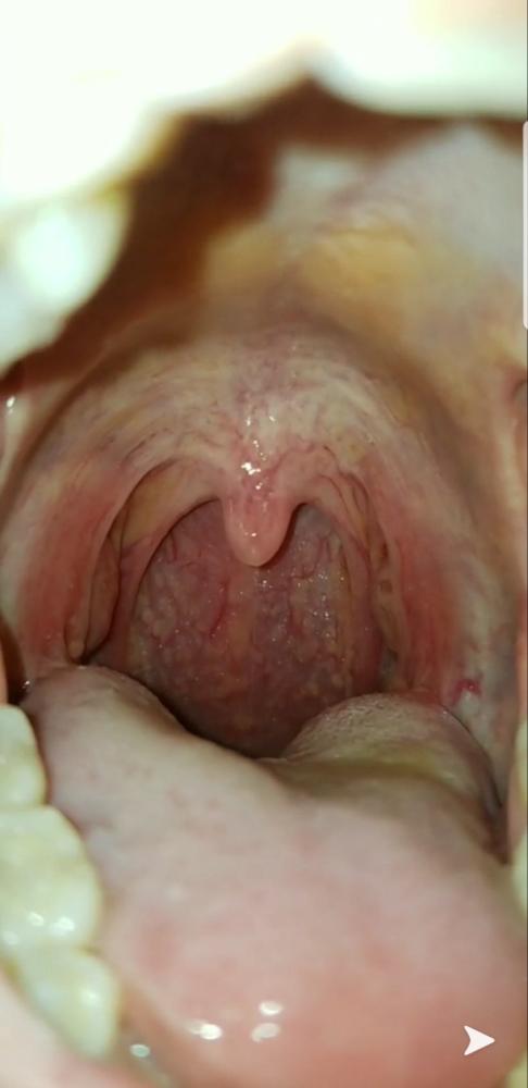 Infectia cu HPV (Human Papilloma Virus) | triplus.ro