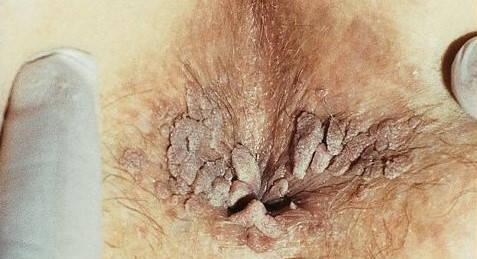 Candidoză de veruci genitale