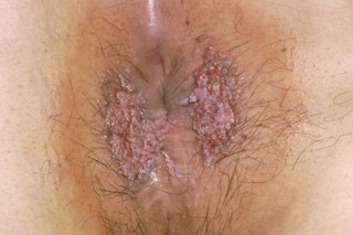 Hpv rectal warts. Papilloma virus trasmissione mani
