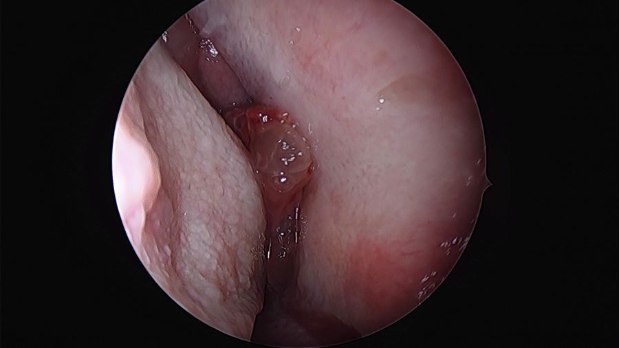 Inverted papilloma nasal treatment. Cargado por, Inverted nasal papilloma treatment
