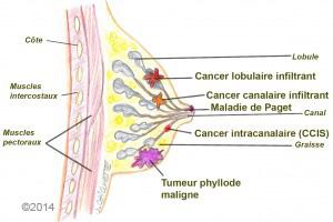 Cancerul si sarcina -Efectele cancerului asupra fătului