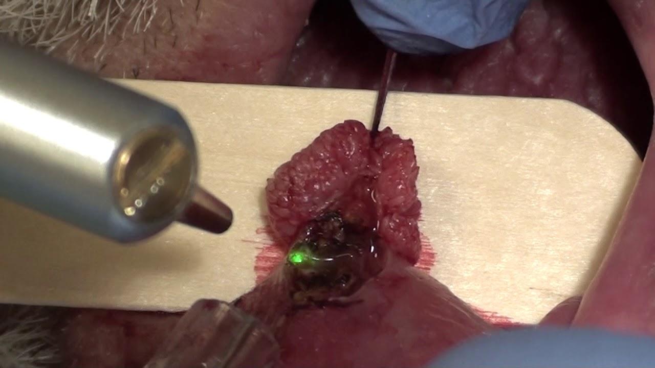 micropapilloma squamoso giardien bei katzen