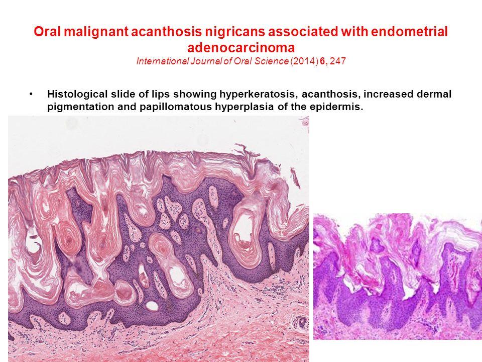 papillomatous epidermal acanthosis