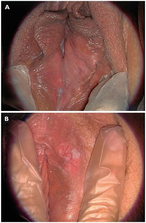 papillomavirus demangeaison