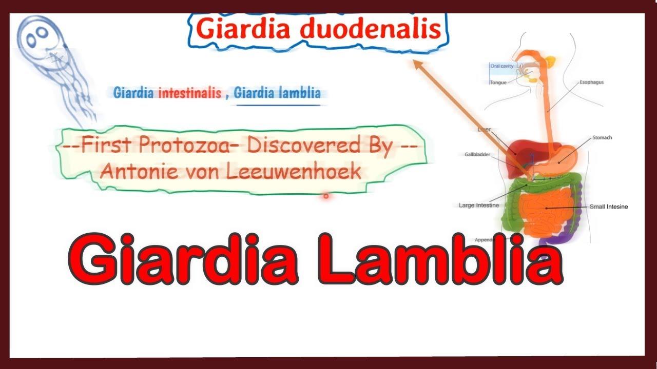 simptom de infecție cu giardia intraductalis papilloma tunetei