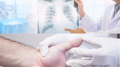 se poate vindeca cancerul la plamani)