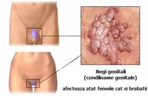 tratament papiloma virus barbati